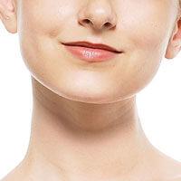 顎変形症の外科矯正